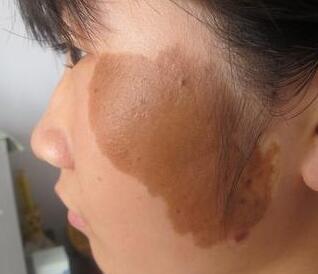 咖啡斑症状图片