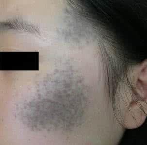 太田痣症状图片