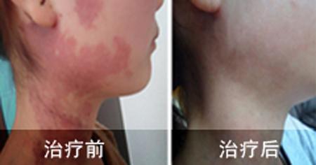 鲜红斑痣治疗前后对比图