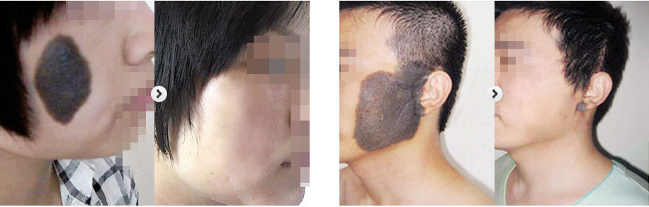 黑毛痣治疗后效果图