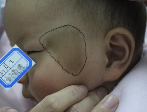 宝宝咖啡斑 图片