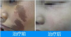 咖啡斑治疗前后对比图片
