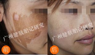 胎记治疗前后对比图片