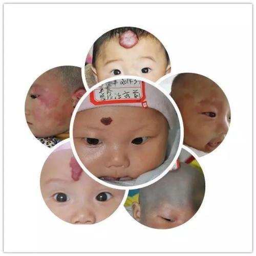 各种宝宝胎记图片