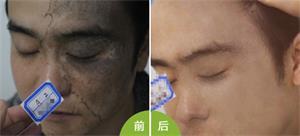 青色胎记治疗前后图片
