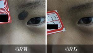 广州健肤黑毛痣治疗图片