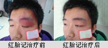 广州鲜红斑痣医院
