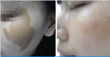 咖啡斑治疗图片