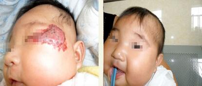 婴幼儿血管瘤治疗图片